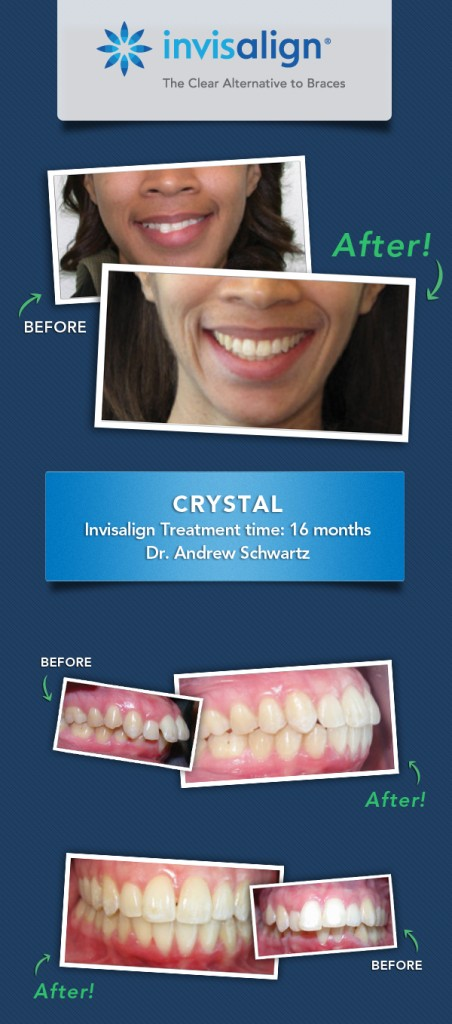 invisalign results fix dental issues_crystal